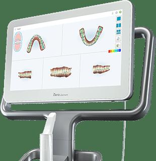 iTero Element Scanner Aten Orthodontics Janesville WI